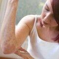 Симптомы дерматита на руках