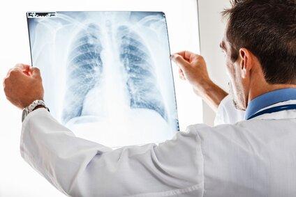 Осмотр врачом результатов рентгена