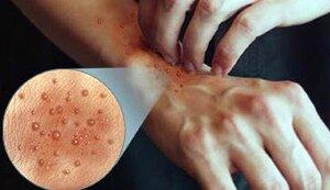 Проявления дерматита на руках