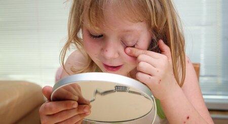 Девочка осматривает место укуса