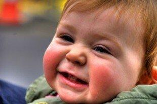 Сыпь на лице у малыша