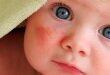 Малыш и диатез на щеках