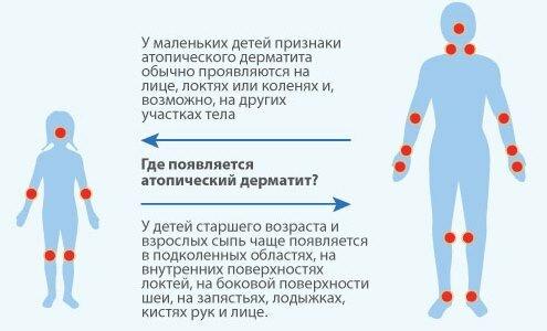 Точки проявления заболевания