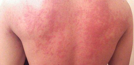 Высыпания на коже спины