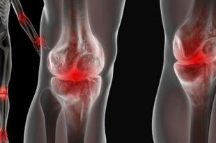 Наглядное изображение боли в суставах